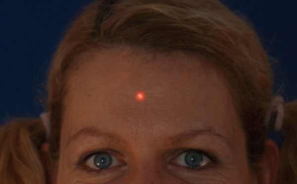 Woman with red laser dot on face